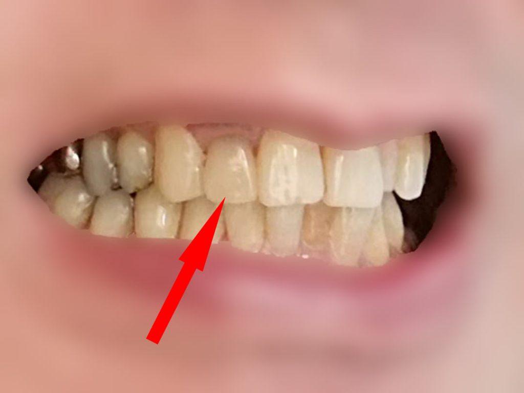 前歯のオールセラミッククラウンの状態