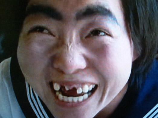 前歯を抜歯した状態